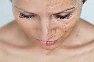 Крем от пигментных пятен на лице