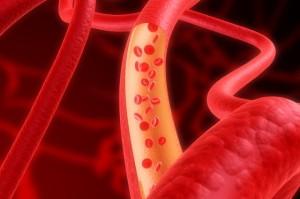 Как предотвратить анемию?