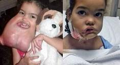Пластические хирурги удалили «вторую голову» девочке
