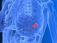 Разработана инновационная диагностика рака груди