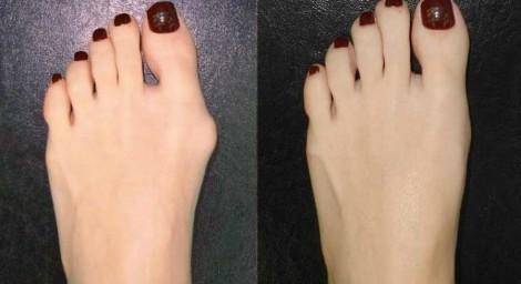 Косточка на ногах: как избавиться и предотвратить появление