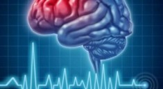 Инсульт может быть вызван бесплодием