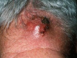 Причины и симптомы фурункулеза