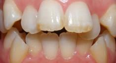 Из-за чего возникает и как лечится скученность зубов