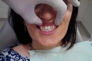 Как лечится скученность зубов