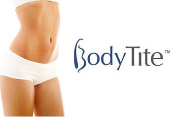 BodyTite – коррекция фигуры и подтяжка кожи без фитнеса и диет