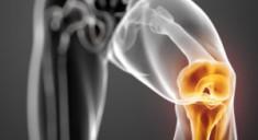 Риск возникновения артрита у мужчин и женщин зависит от разных причин