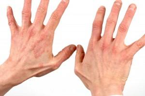 Симптомы начальной стадии псориаза