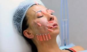 Безоперационная или операционная подтяжка лица