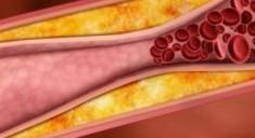 Высокие люди рискуют преждевременно умереть от тромбоза
