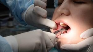 Почему зуб мудрости нужно удалять