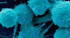 Определена зависимость метастазирования при раке от кровотока